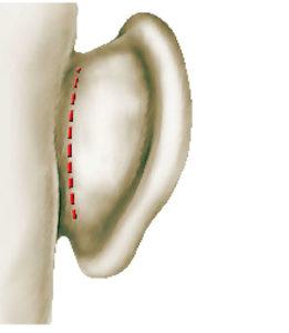 Otoplastie ou chirurgie esthétique des oreilles à Arras dans les Hauts de Seine - Dr Mortier