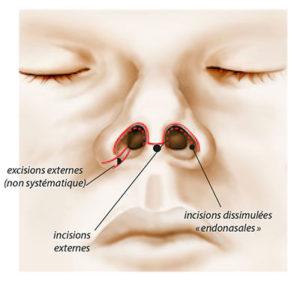Rhinoplastie ou chirurgie esthétique du nez à Arras dans les Hauts de Seine - Dr Mortier