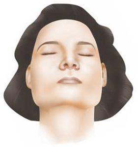 Lifting des lèvres supérieures du visage - Dr Mortier, chirurgien plasticien à Arras